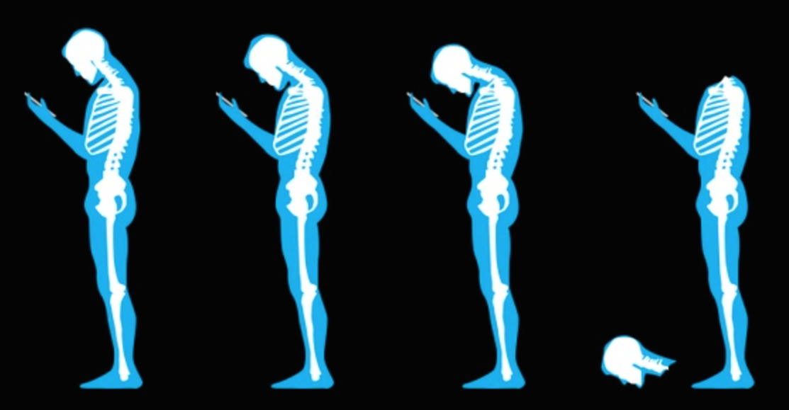 Posture pain osteopath