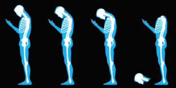 Common Myths About Posture and Pain